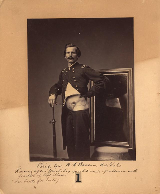 Фотографии солдат, получивших ранения во время Гражданской войны в США