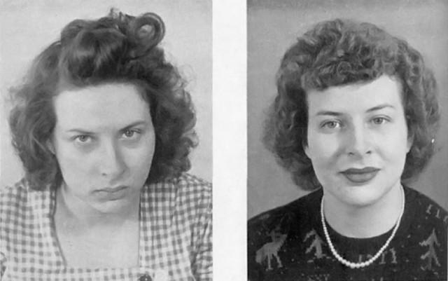 «Золотая эра лоботомии»: фотографии пациентов до и после