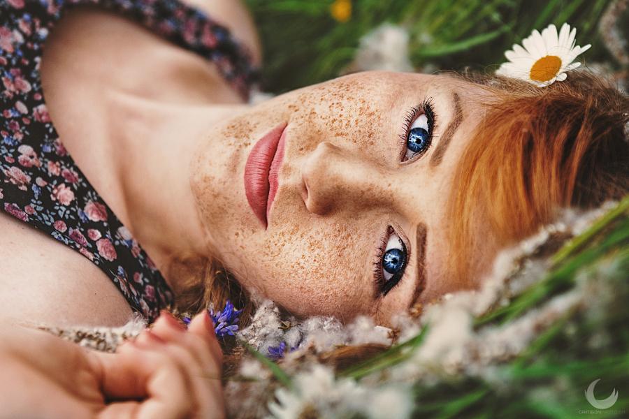 30 прекрасных портретов, которые вызывают любовь к веснушкам
