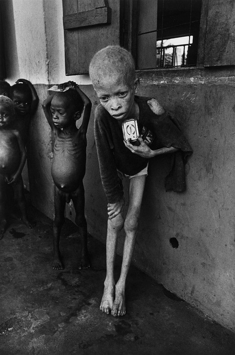 Albino Boy Biafra Don McCullin 1969
