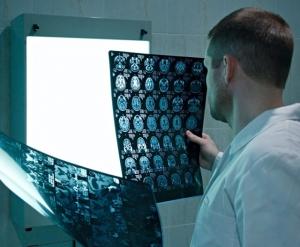Учёные открыли молекулярный процесс в мозгу, который может вызывать шизофрению