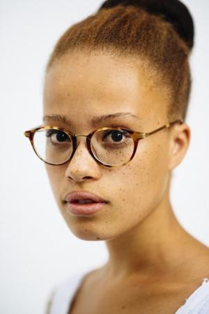 Фотограф Мишель Маршалл сделала портреты рыжеволосых людей с веснушками, чтобы разрушить стереотипы