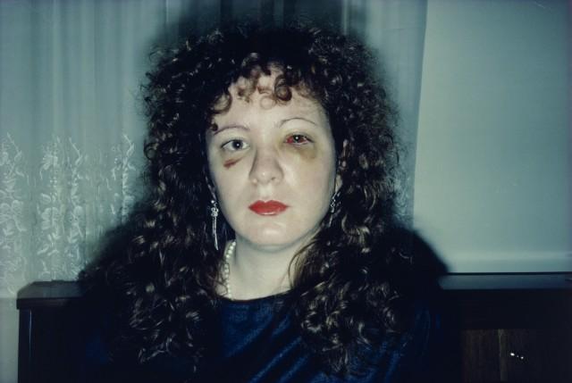 Нан через месяц после избиения, 1984. Автор Нан Голдин