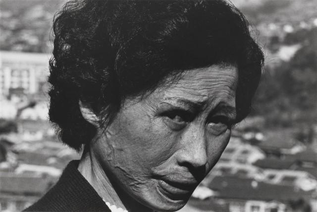 Христианка с келоидными шрамами, Нагасаки, 1961. Фотограф Сёмэй Томацу