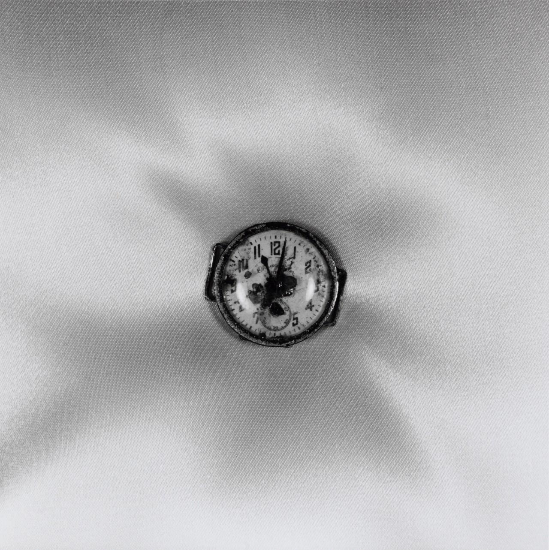 Повреждение атомной бомбой наручные часы, остановившиеся в 11.02 часов 9 августа 1945 года, Нагасаки. Фотограф Сёмэй Томацу