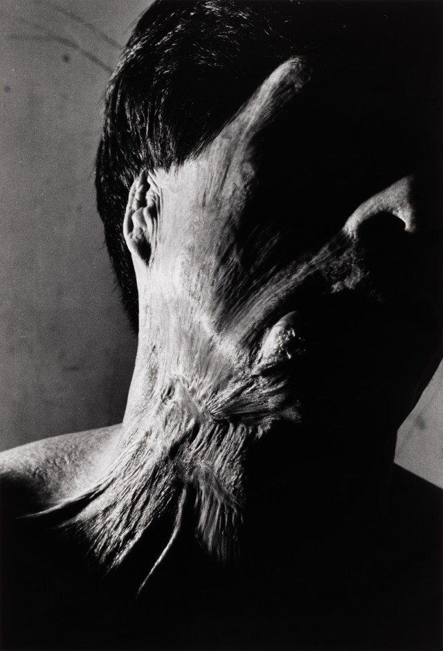 Хибакуша Сенджи Ямагути, Нагасаки, 1962. Фотограф Сёмэй Томацу