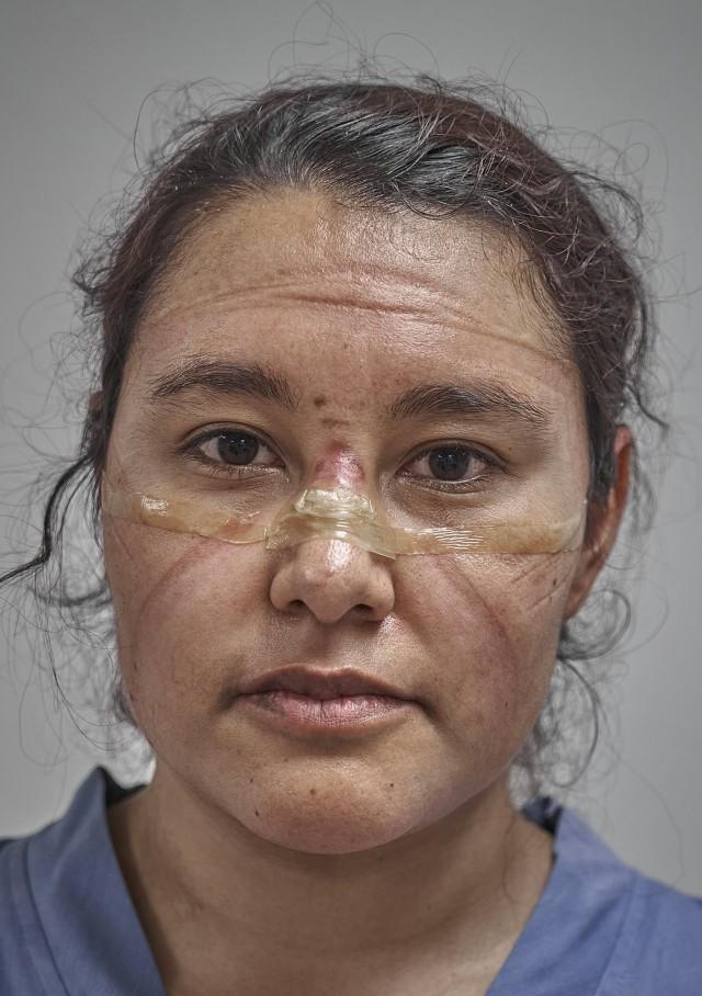 2 место в категории «Портреты», 2021. Доктор в конце смены со следами от защитной маски, Мехико, Мексика, 19 мая 2020 года. Автор Иван Масиас