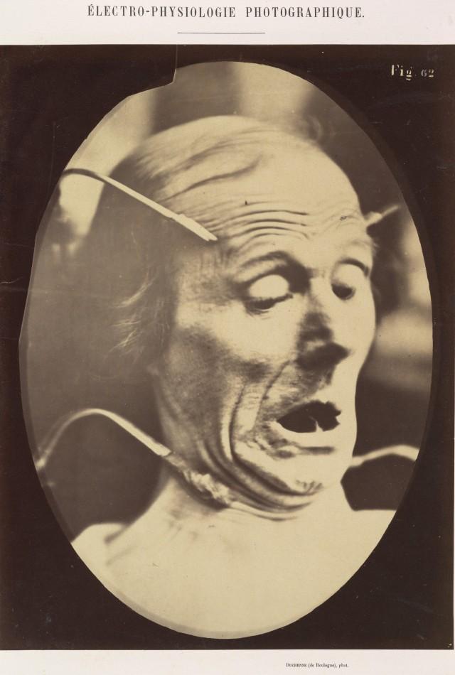 «Страх, полупрофиль». Из экспериментов по электротерапии невропатолога Гийома Бенжамена Армана Дюшена. Автор Адриен Турнашон