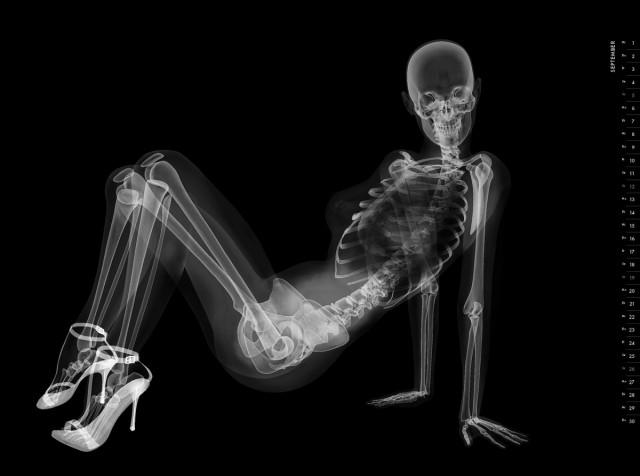 Рентгеновская съёмка секса