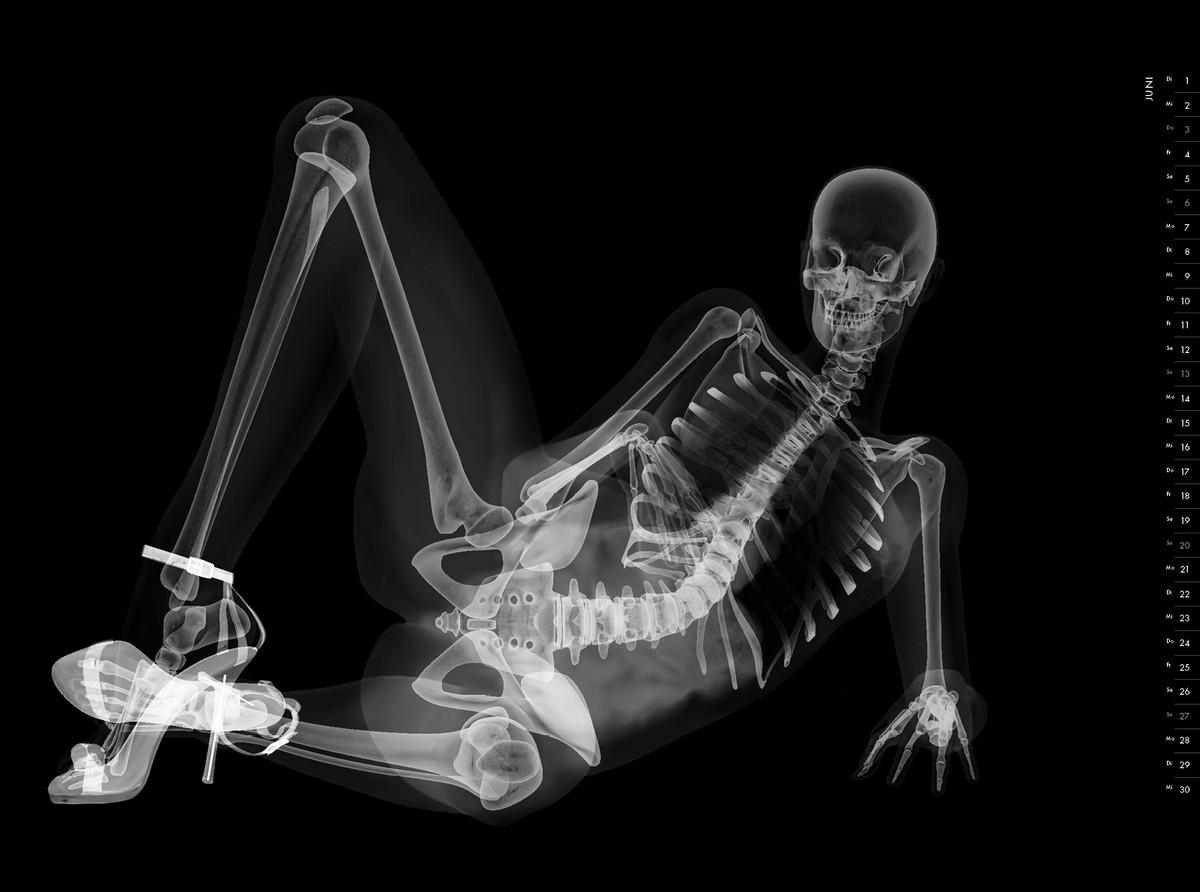 https://cameralabs.org/media/lab19/01/07-1/rentgenovskiy-pinap-meditsinskiy-kalendar_7.jpg
