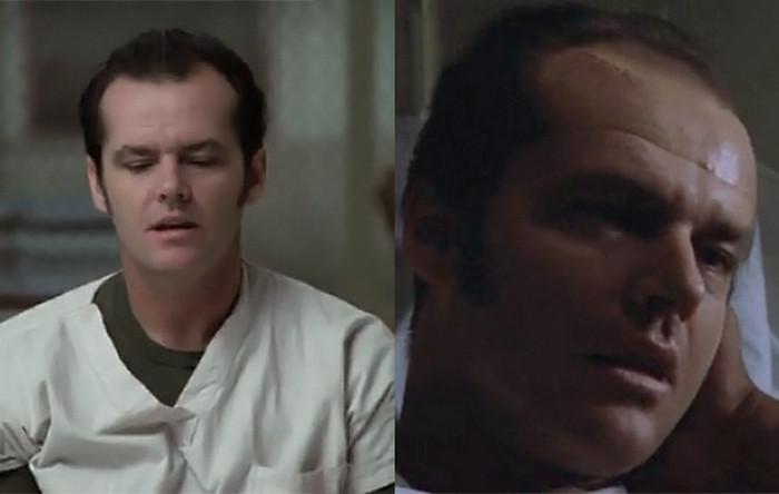 fotografii patsientov do i posle lobotomii 0