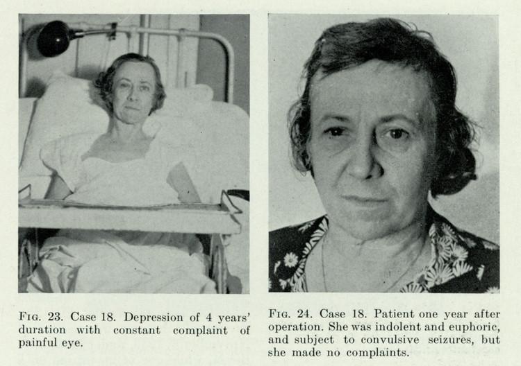 fotografii-patsientov-do-i-posle-lobotomii 10