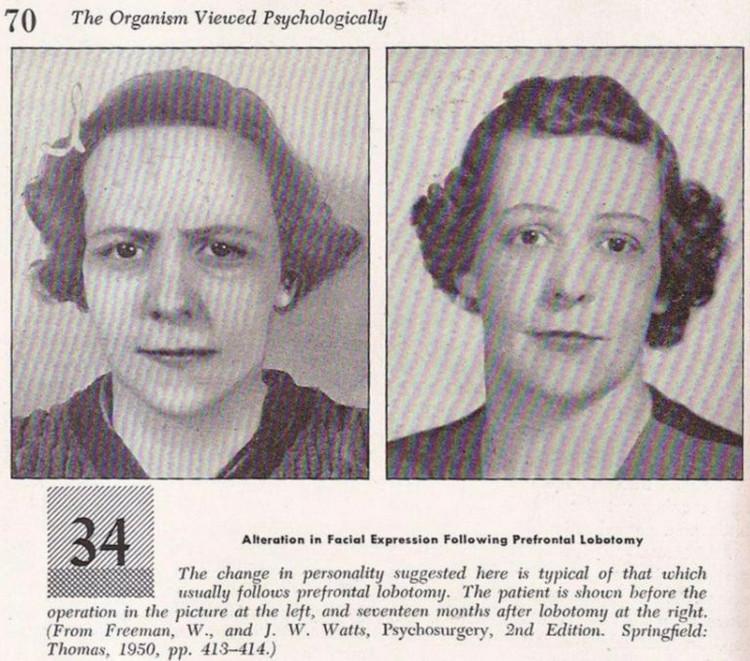 fotografii-patsientov-do-i-posle-lobotomii 16