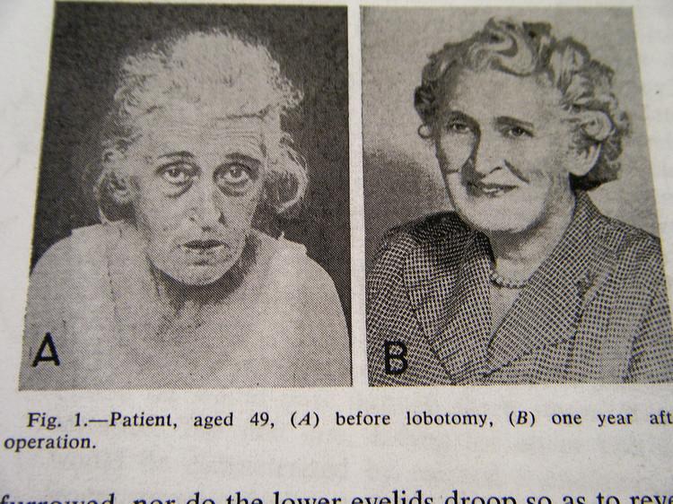 fotografii-patsientov-do-i-posle-lobotomii 5