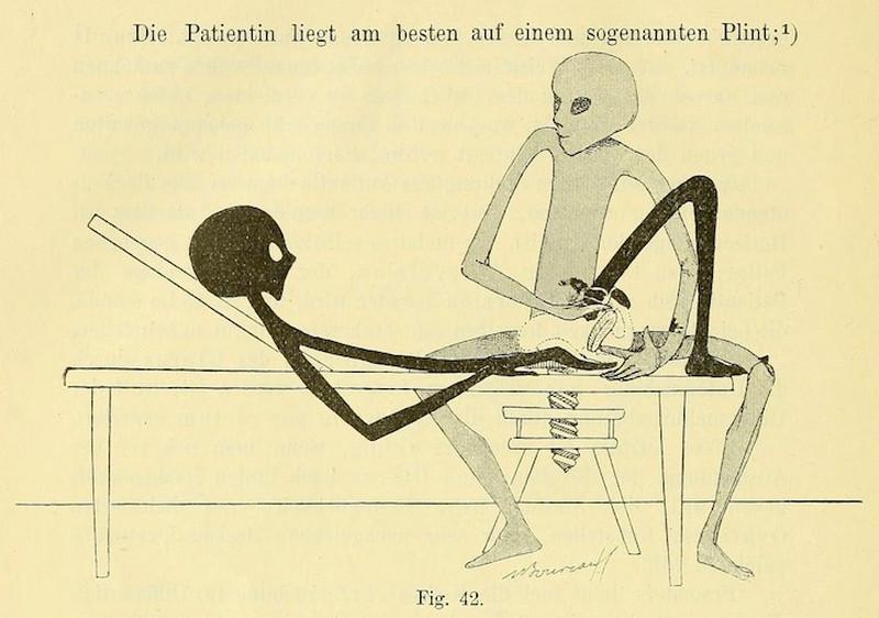 lechebnaya-gimnastika-v-ginekologii-po-Ture-Brandtu-illyustratsii 15