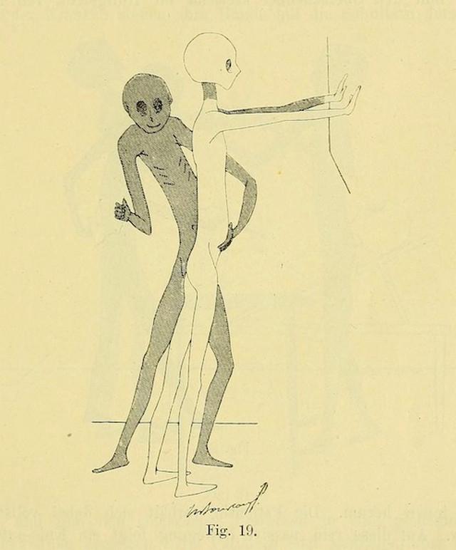 lechebnaya-gimnastika-v-ginekologii-po-Ture-Brandtu-illyustratsii 6