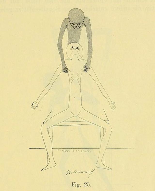 lechebnaya-gimnastika-v-ginekologii-po-Ture-Brandtu-illyustratsii 9