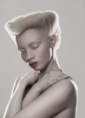Южноафриканский фотограф разрушает суеверия, чтобы помочь альбиносам